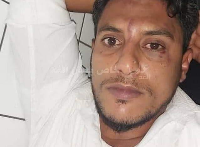 تفاصيل إعتداء جنود قائد الحزام الأمني في العاصمة عدن على موظف المطار